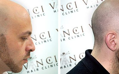 Medical Clinic Create Hair Tattoos For Bald Men